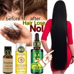 4 Best Hair Growth Oil To Restore Your Hair Naturally
