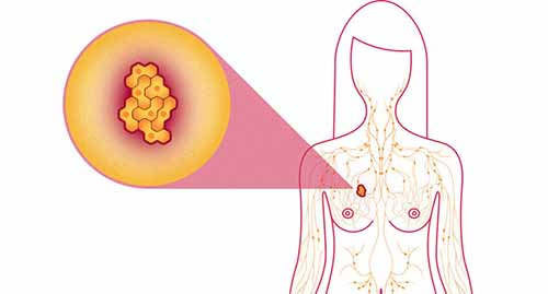 What Those Lumps, Bumps, and Weird Conditions Really Mean